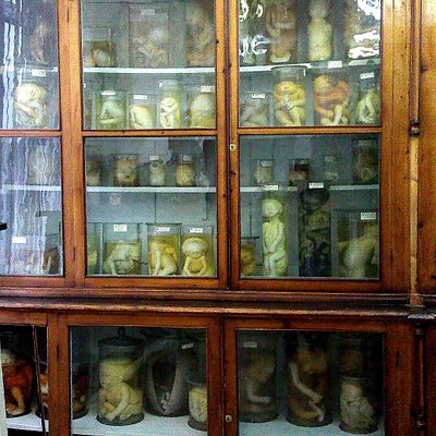 Многочисленные экспонаты музея патологической анатомии