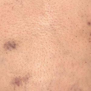 Massage Bruising