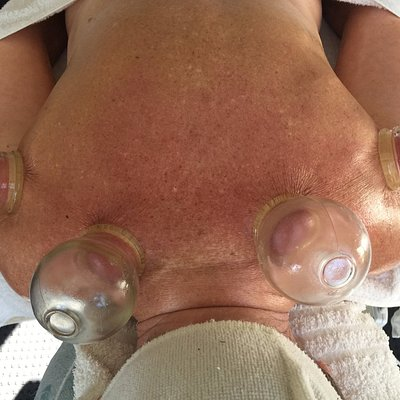 Upper Body Stress, Cupping of the Rotator Cuff and the Levator Scap Muscles. Cupping Changes Liv