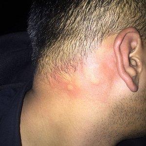 Bed Bug Bites @ PVR PRIYAS