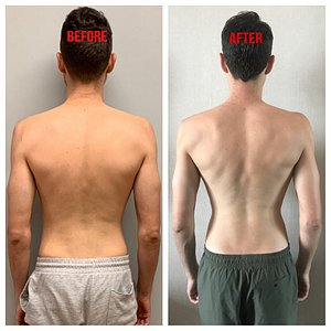 Before and after 5 sessions with moon--I have a whole new back!