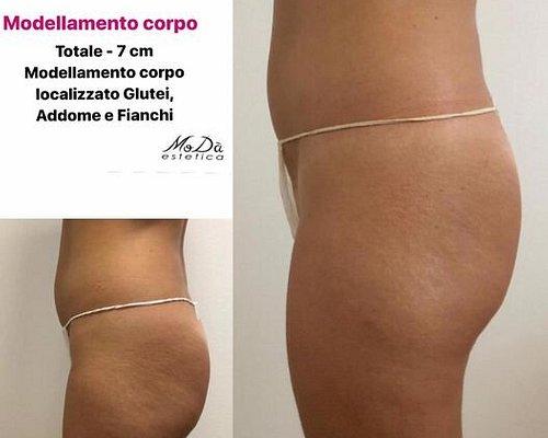 BENESSERE & RELAX  MODELLAMENTO CORPO